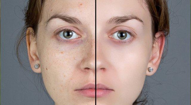 Yüzdeki Kahverengi Benler Nasıl Geçer? Doğal Çözümler, Bitkisel Tedavi Yöntemleri